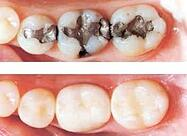 Amalgam ( dark ) vs Composite ( white ) fillings