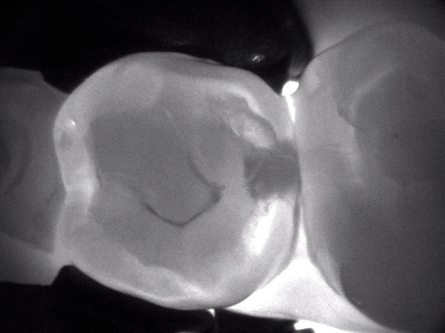 Can you improve early cavity detection?